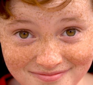 Close-up photo of smiling, red-haired boy aged c10 years old with strongly freckled nose, cheeks and forehead.